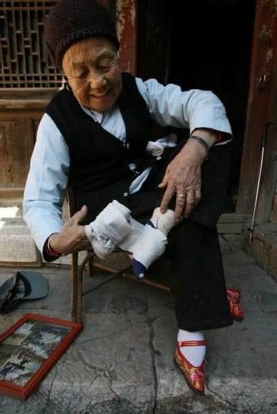 ηλικιωμένη τυλίγει τα πόδια της