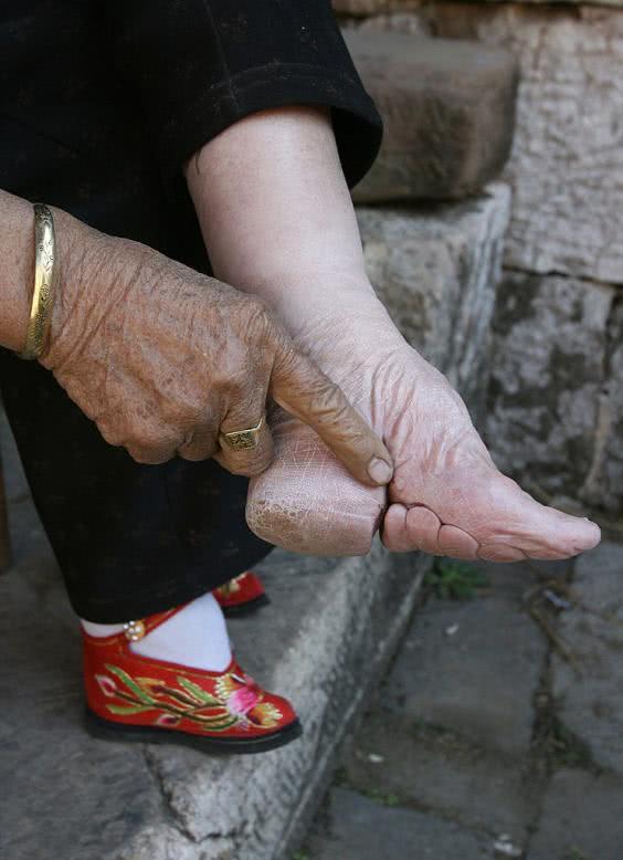 παραμορφωμένο πόδι γυναίκας
