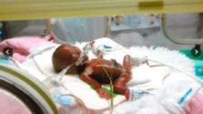 μικρότερο μωρό στον κόσμο
